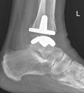 enkel prothese bij artrose