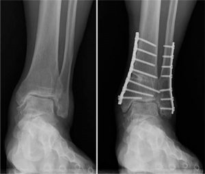 Supra-malleolaire osteotomie enkel