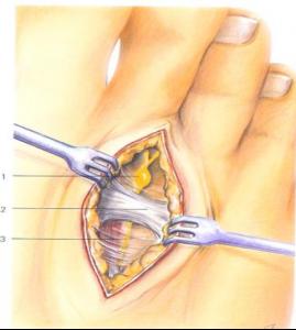 Inter-metatarsale ligament