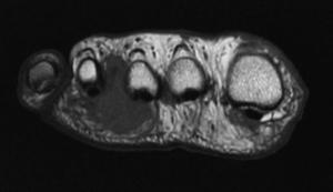 MRI scan van Morton's neuroom tussen 3e en 4e intermetatarsale ruimte